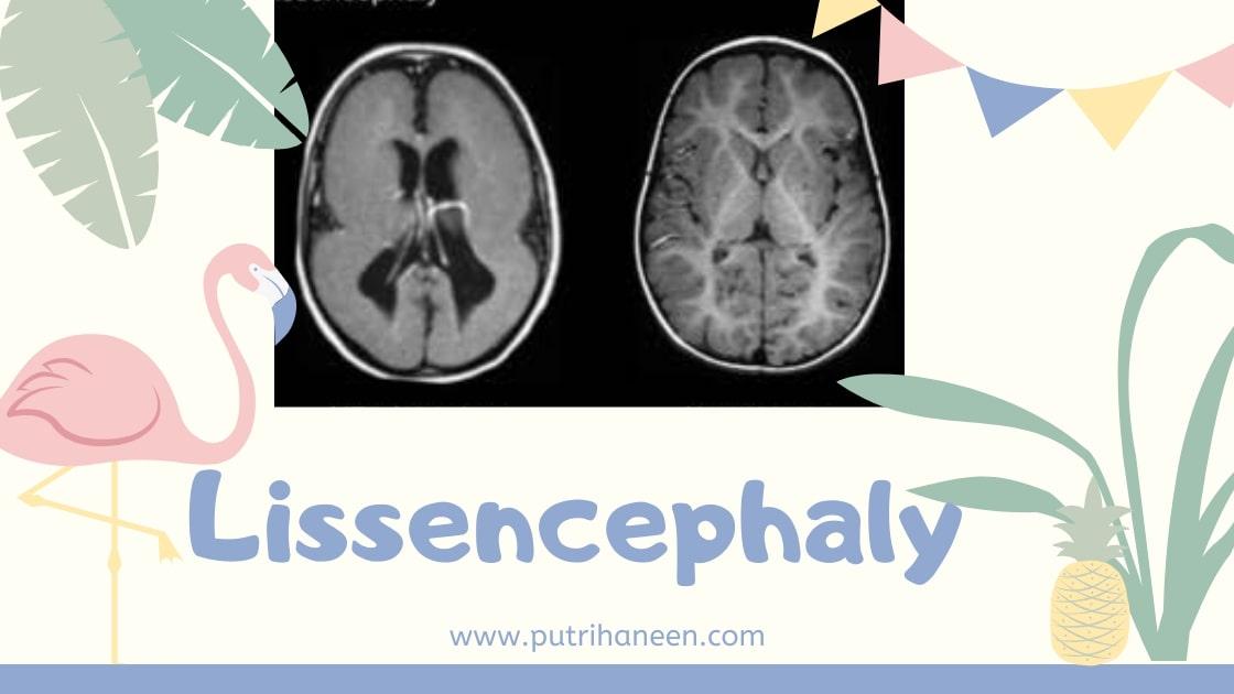lissencephaly