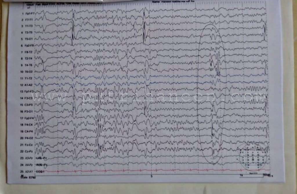 hasil eeg west syndrome